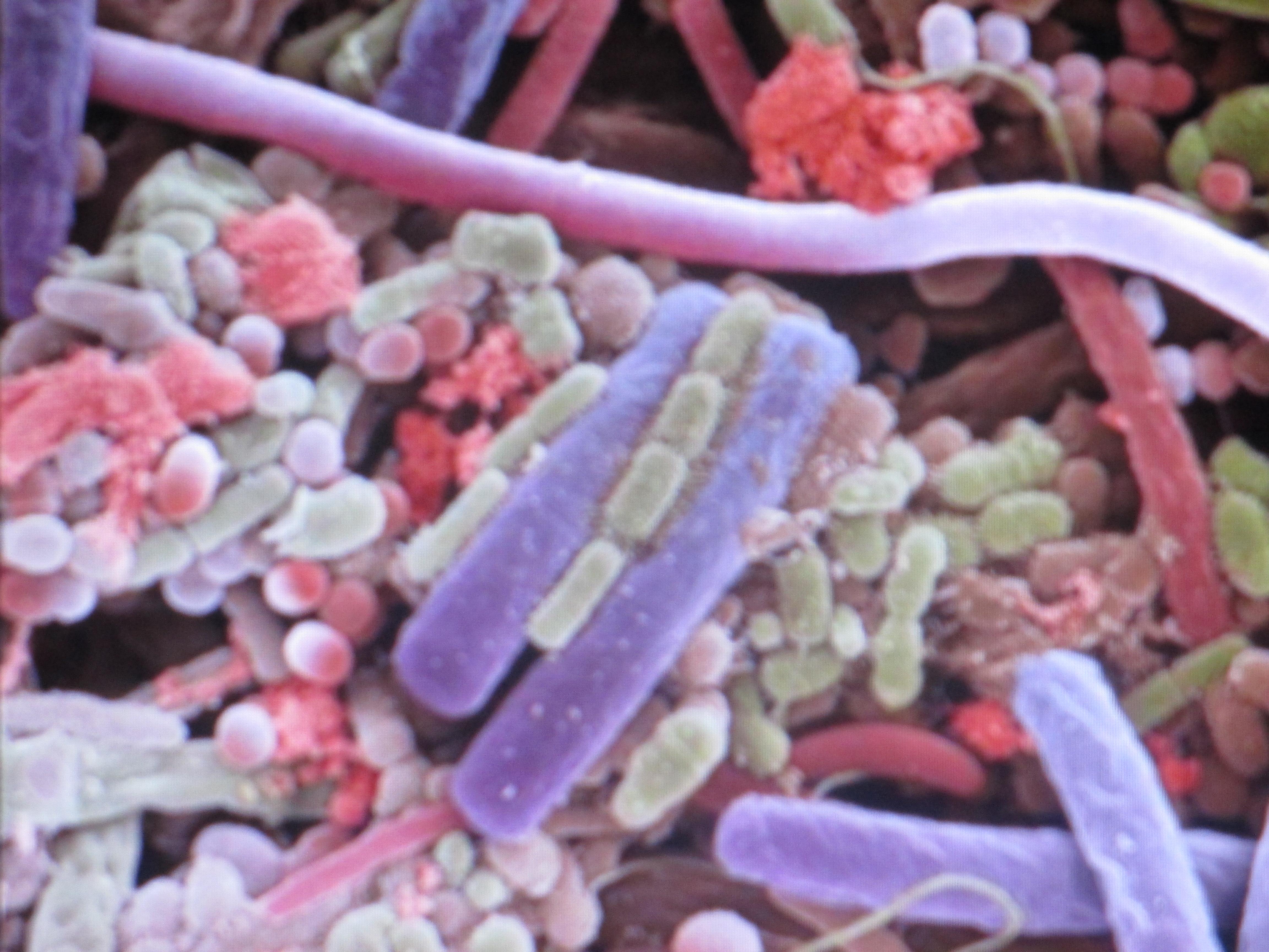 bakterii-v-sperme
