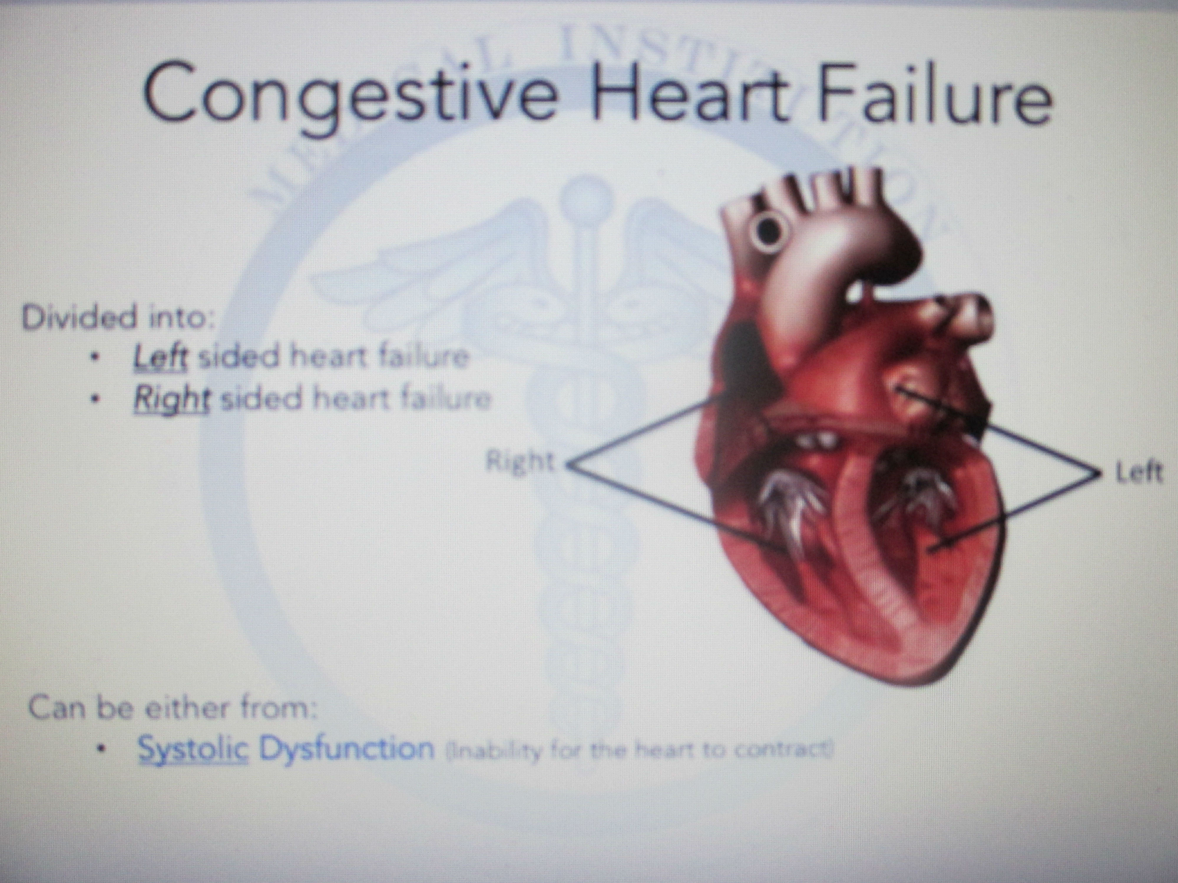 Img Weakened Heart Muscle Causes